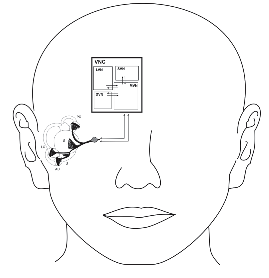 Vestibular prosthesis with micro-electric-mechanical sensors